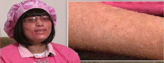 Woman grows fingernails all over body instead of hair